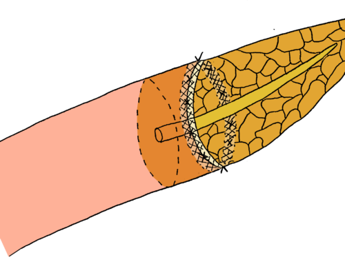 One-layered end-to-side pancreatojejunostomy