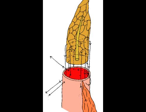Overlapping transpancreatic U-suturing technique