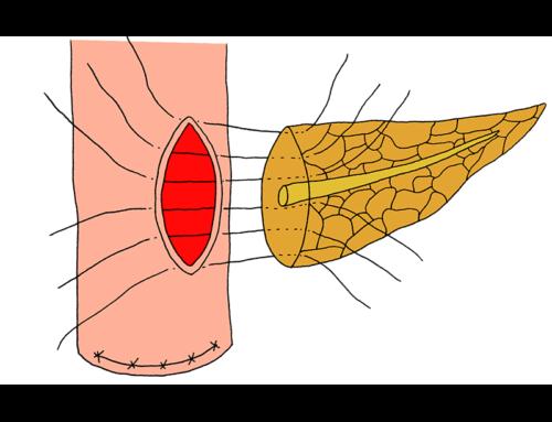 Penetrating-suture pancreatojejunostomy
