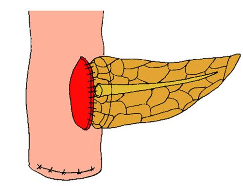 Duct-to-mucosa adaptation