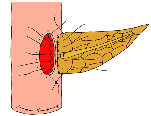 One-layered anteriorly and two-layered posteriorly