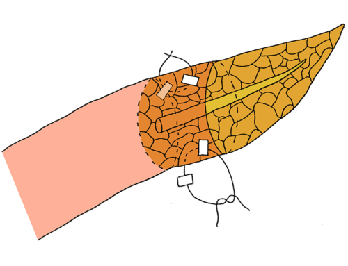 Using two transpancreatic sutures with buttresses