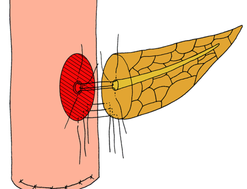 Duct-to-mucosa technique