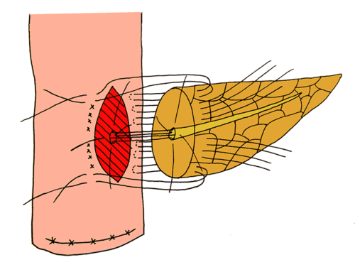 Blumgart anastomosis