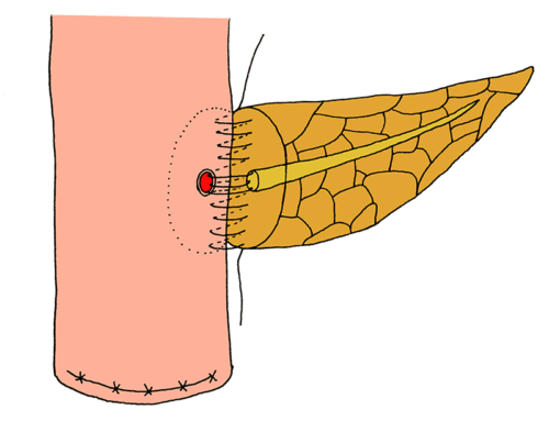 Suspension pancreatic-duct-jejunum end-to-side continuous suture