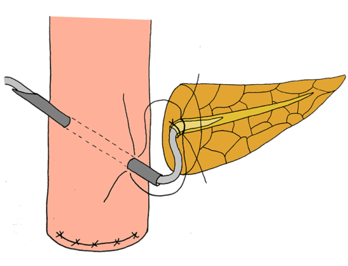 Pancreatic duct-invagination anastomosis